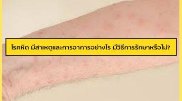 โรคหิด มีสาเหตุและการอาการอย่างไร มีวิธีการรักษาหรือไม่?