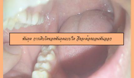 ฟันคุด การเติบโตของฟันคุดแบบใด จึงจะต้องถอนฟันออก
