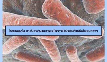 โรคหนองใน การป้องกันและตรวจโรคการวินิจฉัยด้วยยีนโพรบต่างๆ