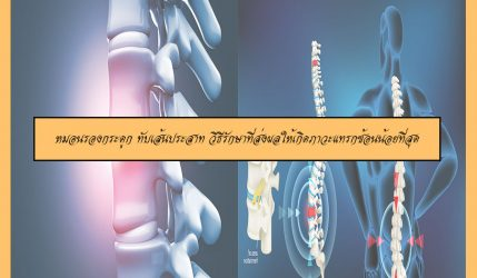 หมอนรองกระดูก ทับเส้นประสาท วิธีรักษาที่ส่งผลให้เกิดภาวะแทรกซ้อนน้อยที่สุด